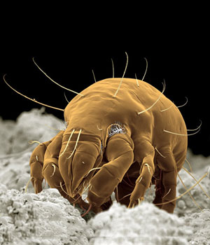 The Most Common Allergenic Dustmite - Electron Scan Image of Dermatophagoides pteronyssinus